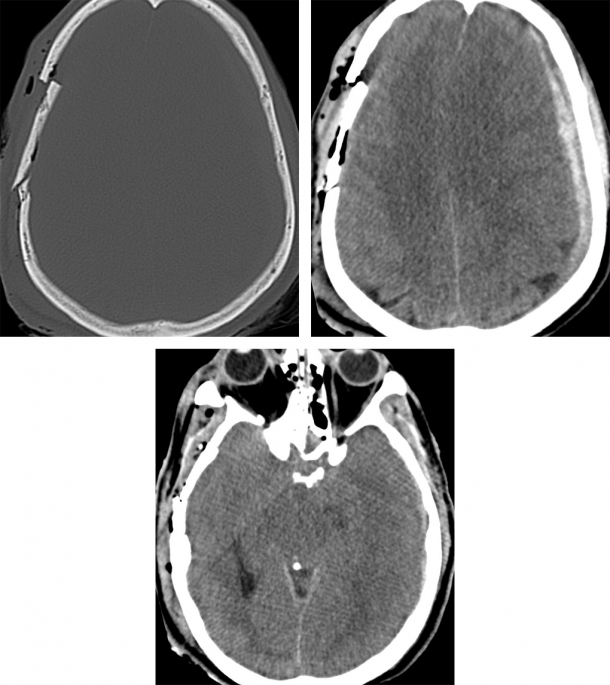 A Linear Skull Fracture A And A Depressed Skull Fracture Manual Guide