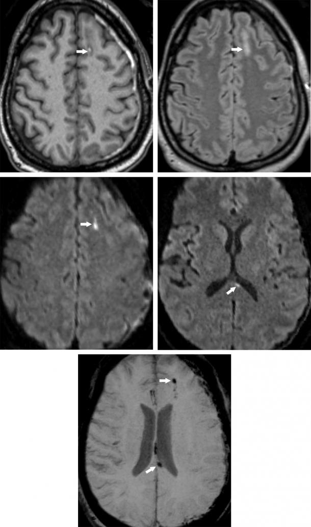 Diffuse Axonal (Shear) Injury (DAI) | The Neurosurgical ...